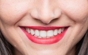 Avanços no Tratamento Odontológico